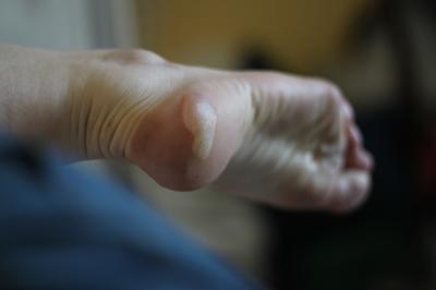 La préparation des pieds à un effort long